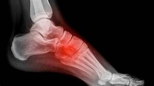 How To Avoid Foot Pain In The Arch