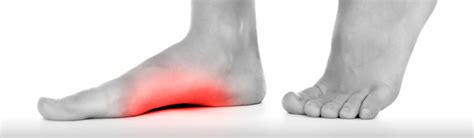 dolore al piede parte interna dolore sotto il piede una guida completa mdm fisioterapia