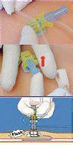 pression positive chambre implantable aiguille de huber pps flow geres
