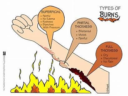 Nursing Burns Types Medical Mnemonics Surgical Shock