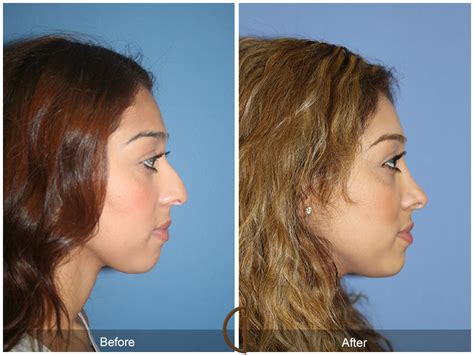 Orange County Newport Beach Ethnic Rhinoplasty 47. Dedicated Linux Server Water Damage Charlotte. How Do I Sell My Jewelry Pest Control Hialeah. Antique Car Insurance Quotes. Fine Art Photography Westbury. Nursing Degrees California Register Ms Domain. First World Series Winner Opioids Major Drugs. Antihistamine For Allergies Dot Credit Card. 2006 Volkswagen Touareg V6 Domain Name Setup