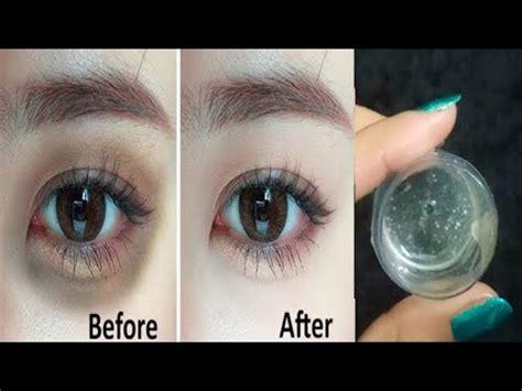 Best Eye Treatment For Under Eye Wrinkles   Health ...