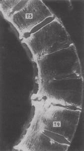 Bone Changes In Ankylosing Spondylitis  Intravertebral
