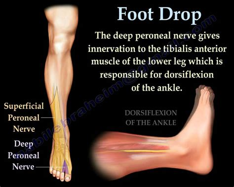 Foot Drop, Peroneal Nerve Injury - Everything You Need To