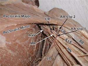 Dissection Of The Left Axilla Where The Axillary Pad Of