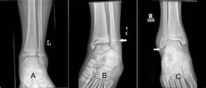 Choosing Wisely  Low Risk Pediatric Ankle Fractures