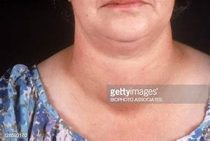 Woman With A Goiter A Goiter Is A Swelling Of The Neck