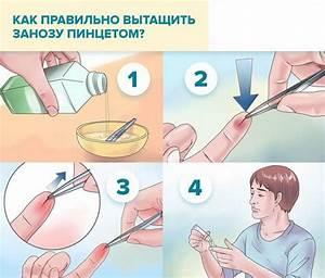 Шейный остеохондроз выпадение волос лечение