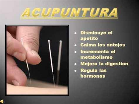 acupuntura para bajar de peso mp4 YouTube