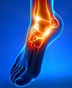 Physical Therapist U0026 39 S Guide To Ankle Fracture