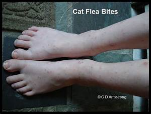 Flea Bites On Humans Ankles