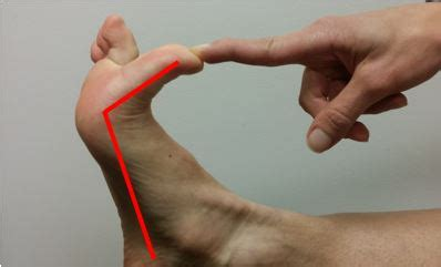 the great toe athletic medicine