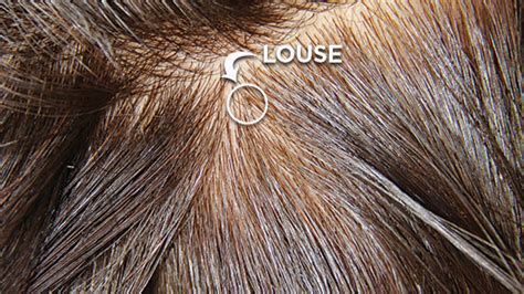 what color is lice lice screening how to tell if you lice