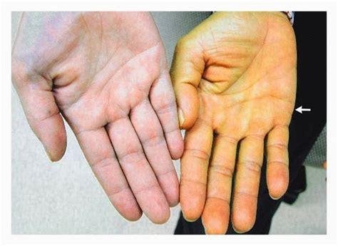 alimentazione nell ipotiroidismo ipovitaminosi a e piedi gialli dieta e nutrizione