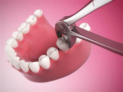extracao dentaria atlas da saude
