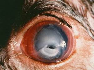 Corneal Ulcers In Cats
