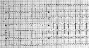 Atrial Flutter Electrocardiogram