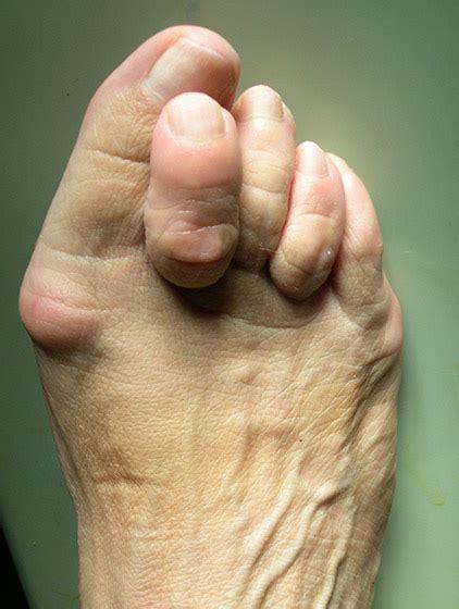 pied de le boule qu est ce qu un hallux valgus clinique du parc 224 lyon 69