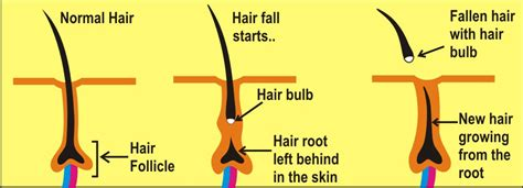 root of the matter part 1 hair articles by dr shahid