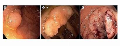 Colon Cancer Sjtu Stages Colorectal Advanced Biox