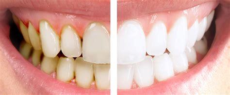 Bleaching  Zähne Schonend Bleichen Oder Aufhellen
