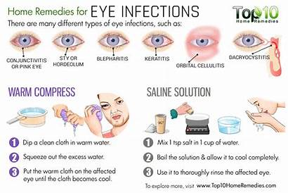 Eye Infection Infections Remedies Eyes Symptoms Pink