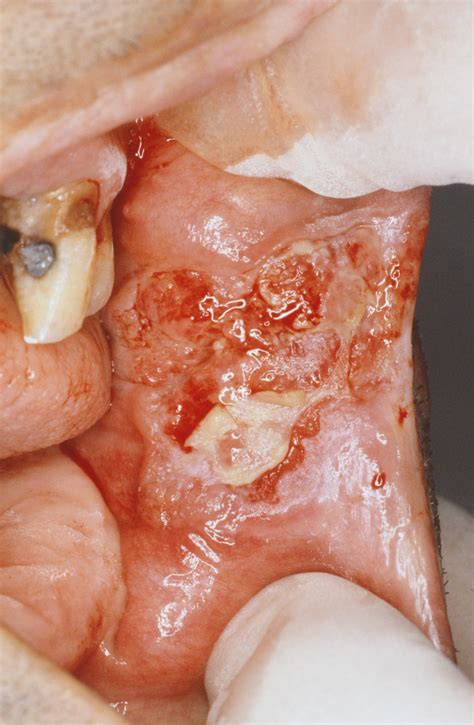 oral squamous cell carcinoma ear nose  throat