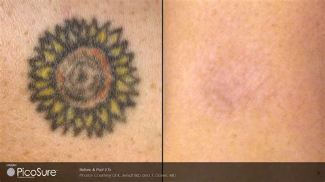 Laser Tattoo Removal Portland picosure tattoo removal portland  key laser center 1920 x 1080 · jpeg