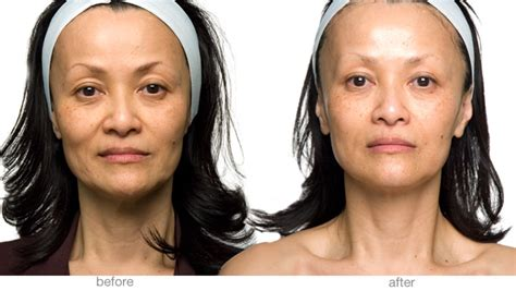 led light therapy before and after led light therapy skin rejuvenation day spa salter point