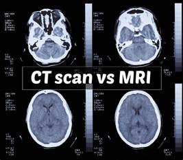 mri vs ct scans understanding the differences