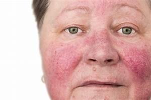 Psoriasis behandeling, hoe kun je psoriasis behandelen?