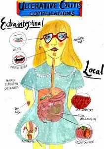 Inflammatory Bowel Disease - Armando Hasudungan  Ulcer Colitis