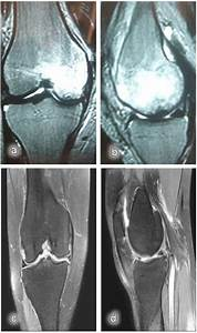 Magnetic Resonance Images  A  Post