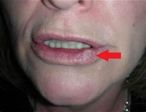 Цистит лечение простатита