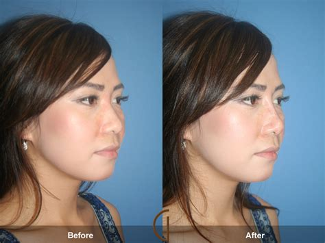Before & After Nose Job 12  Newport Beach Rhinoplasty