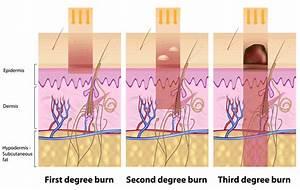 Thermal Burns