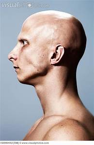 A Side View Of A Bald Man  Handy For Getting The Shape Of
