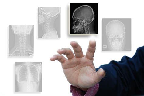 bone ray scan mri ct smoking polega czym diagnostyka medicina bones commercio salute health serca wad naczy krwiononych leczenie lead