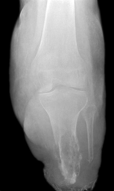 bone infection ray imaging medical cane ltd photograph osteomyelitis 8th which uploaded learn