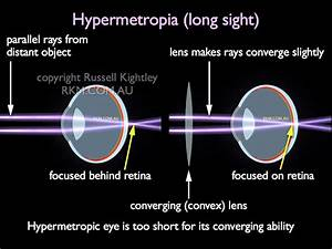Eye  Hypermetropia  Long Sight  By Russell Kightley Media