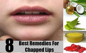 8 Best Remedies For Chapped Lips How To Treat Chapped
