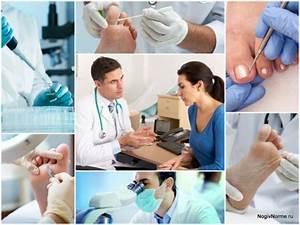 Что эффективнее против грибка ногтей