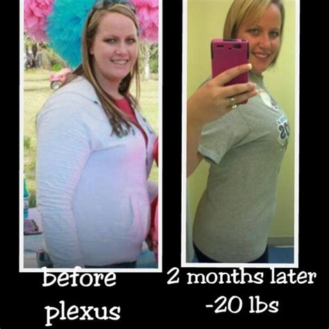 My Journey with Plexus Slim: Before and After with Plexus