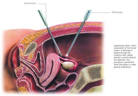 Routine Laparoscopies As A Fertility Evaluation