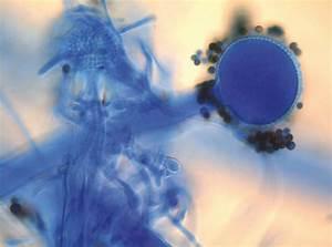 Farbe Gegen Feuchtigkeit : schimmelpilz entfernen schimmelbefall k ltebr cke schimmel schimmel bek mpfen schimmel wand ~ Sanjose-hotels-ca.com Haus und Dekorationen