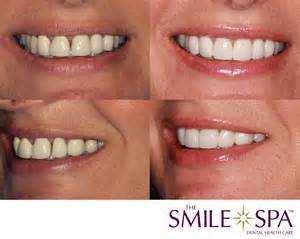 Denture Smile Before and After