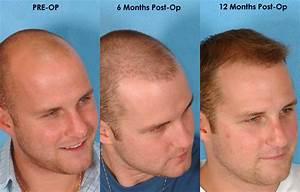 implant hair loss