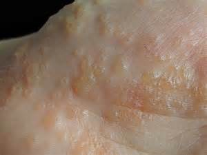 Skin Diseases Eczema Treatment