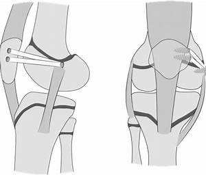 Medial Patellofemoral Ligament Reconstruction Using