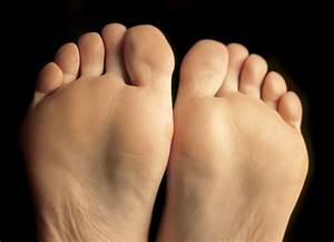 Coldest Winter In Eight Years Heightens Dry Feet Problems